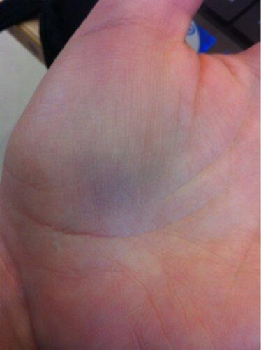 blåmärke i handflatan