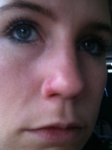 sår i näsan som inte läker