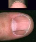 räfflor naglar