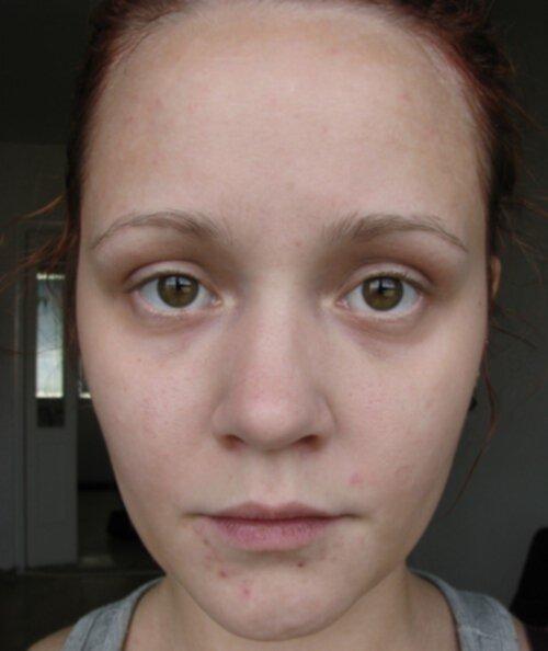 acnicyl cream recension